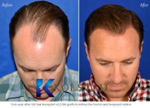 final result hair transplant