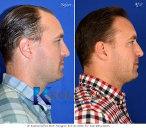 natural hair transplant results