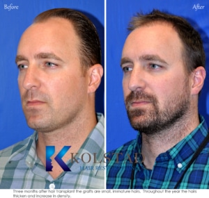 early hair transplant results