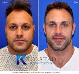 best hair transplant san diego