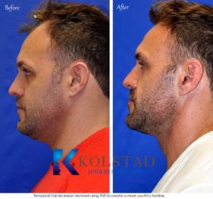 natural hair transplant san diego