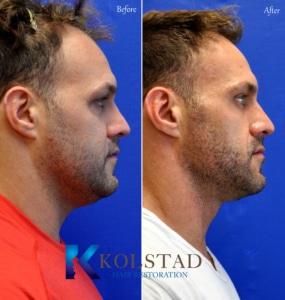 san diego hair restoration