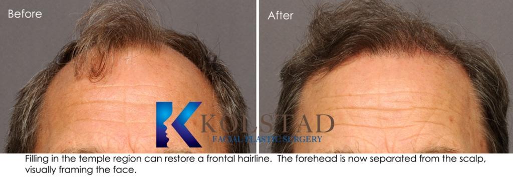 natural hair restoration surgery