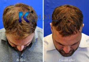 FUE hair transplant san diego
