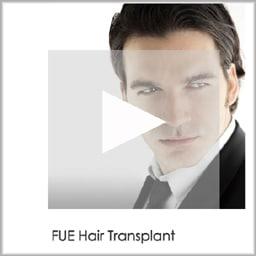 san diego fue hair transplant