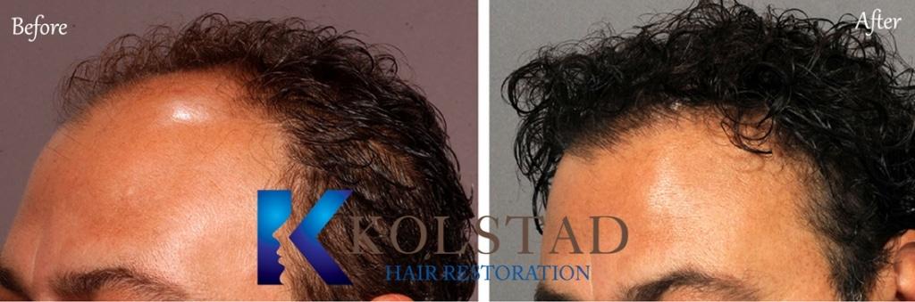 san diego hair transplant