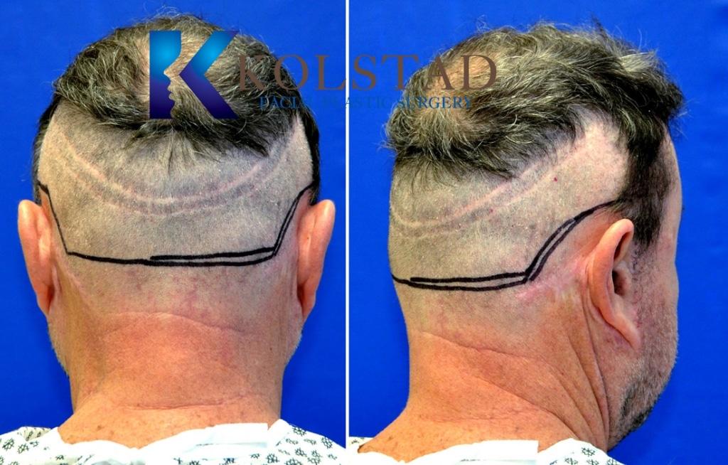 strip scar FUT