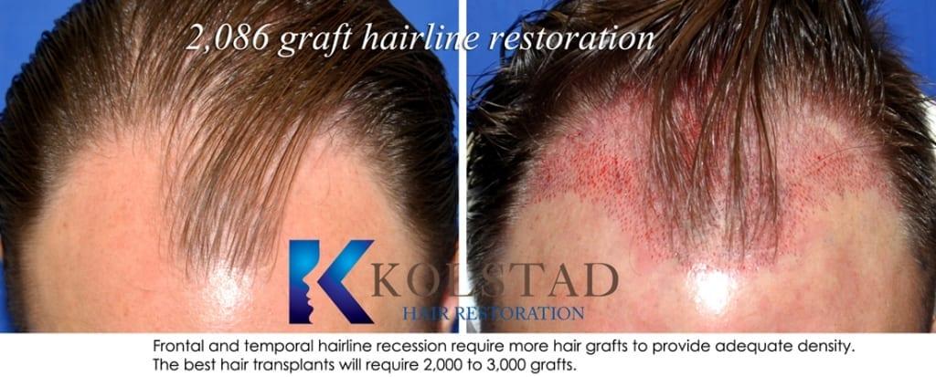 frontal hair transplant san diego 650