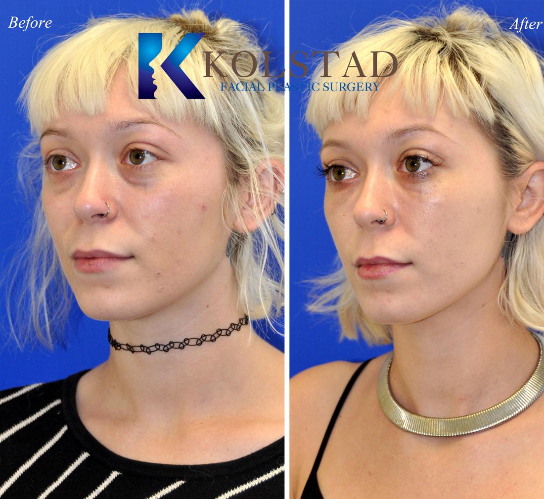 cleft lip repair techniques pdf