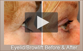 Eyelid and BrowLift La Jolla, CA