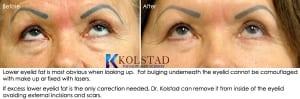 cosmetic eye surgery san diego 106 copy