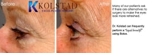 blepharoplasty san diego 34