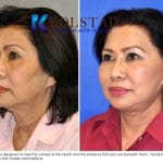 asian face lift 2