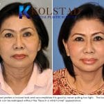 asian face lift 3