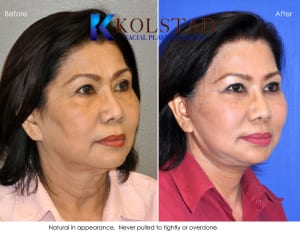 asian face lift 4
