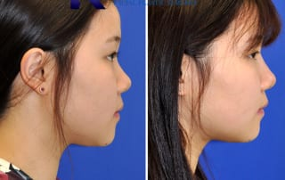 Asian Rhinoplasty San Diego 204 copy