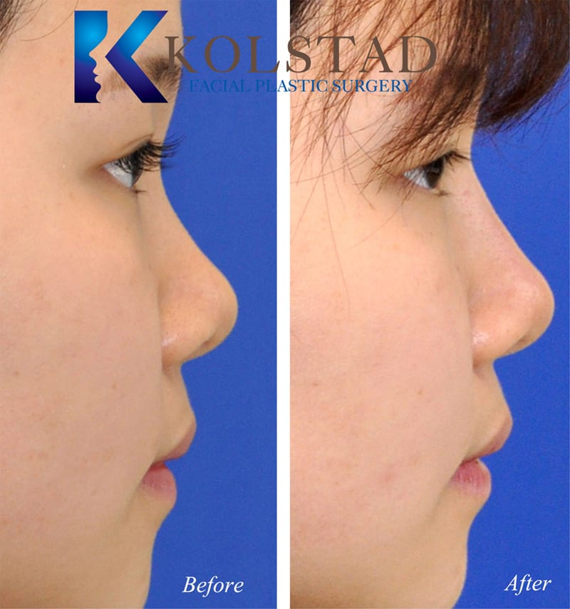 Asian Rhinoplasty San Diego 204