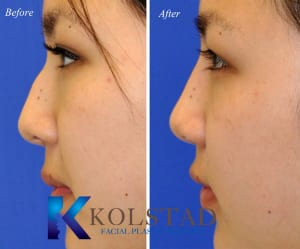 Asian Rhinoplasty San Diego 305 copy