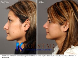 Asian Rhinoplasty Specialist California 8