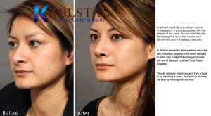 Asian Rhinoplasty Specialist San Diego 5