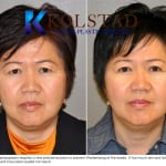 Asian eyelid surgery san diego 1