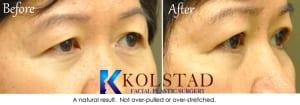 Asian eyelid surgery san diego 2