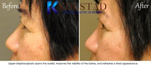 Asian eyelid surgery san diego 3
