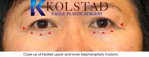 Asian eyelid surgery san diego 5
