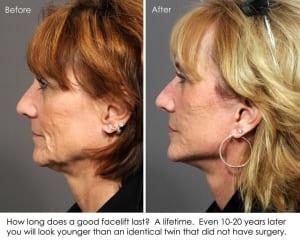 mini face lift 16