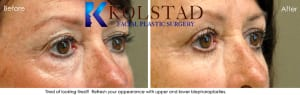 Blepharoplasty in San Diego 1
