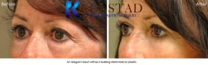 Blepharoplasty in San Diego 2