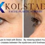 Botox San Diego 7