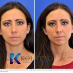 Botox San Diego 800
