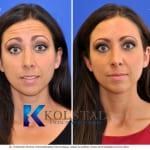 Botox San Diego 801