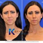 Botox San Diego 802