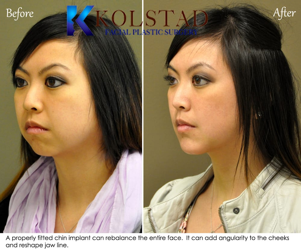 Chin Augmentation San Diego 91