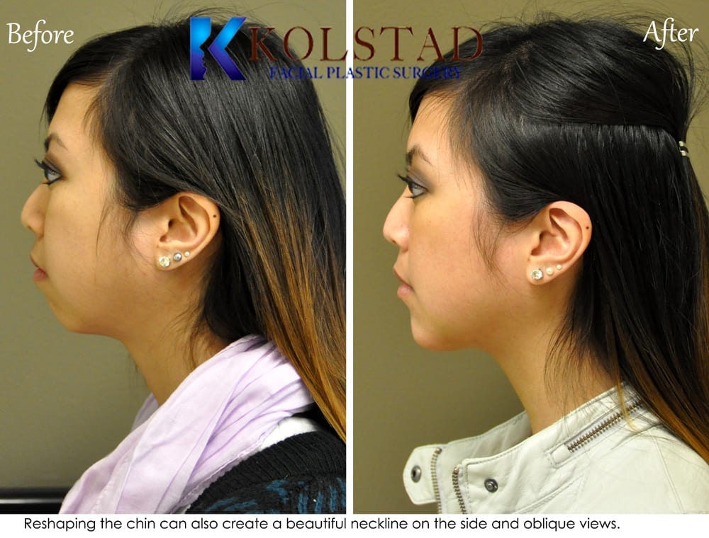 Chin Augmentation San Diego 92