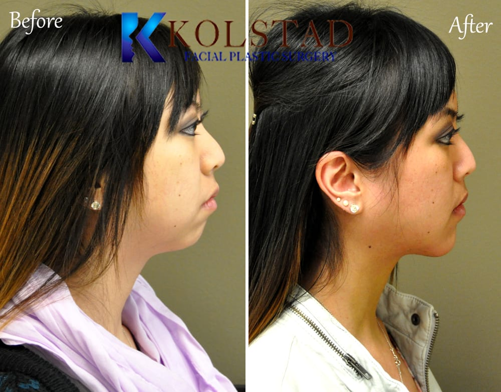 Chin Augmentation San Diego 93