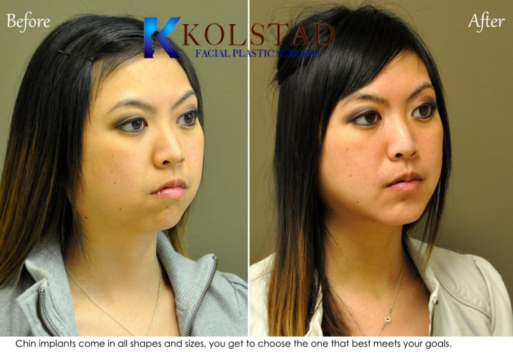 Chin Augmentation San Diego 94