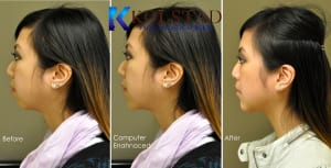 Chin Augmentation San Diego 95