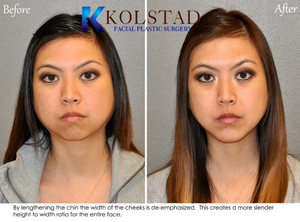 Chin Augmentation San Diego 96