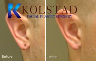 Earlobe gauge repair San Diego blog 1