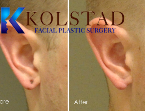 Earlobe Gauge Repair in San Diego