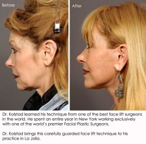 Best Facelift Results