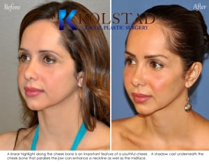 best cheek enhancement, juvederm, voluma