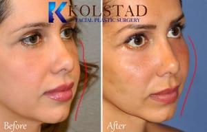 natural cheek enhancement using fillers