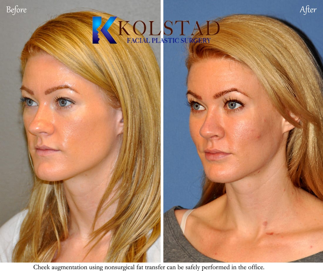 Facial Fat Transfer Before Amp After Gallery Dr Kolstad