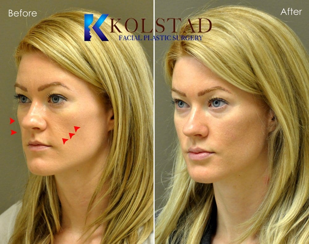 Cheek augmentation san diego 50