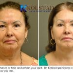 face lift results san diego