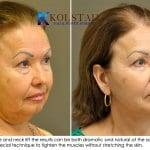 face lift results san diego 2